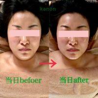 頭蓋骨小顔矯正⭐練習モデルさんビフォーアフター