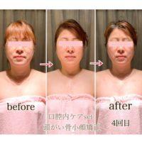 美容整体で花粉症がラク~(^-^)